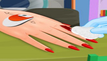 Manicure after injury